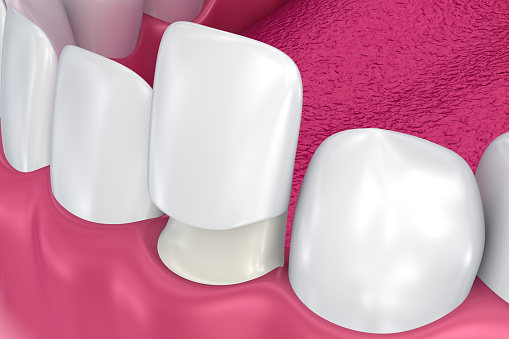Porcelain Veneers at Harmony Dental