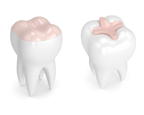 Dental inlays and onlays by dentist in Eugene, OR.