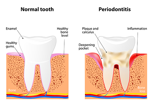 Diagram of gums with periodontitis or gum disease